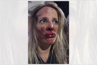 Un golpeador atacó a dos mujeres en Caballito y una terminó internada