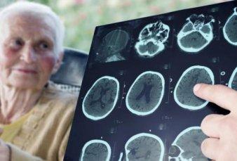 Estados Unidos aprobó un nuevo medicamento para combatir el Alzheimer